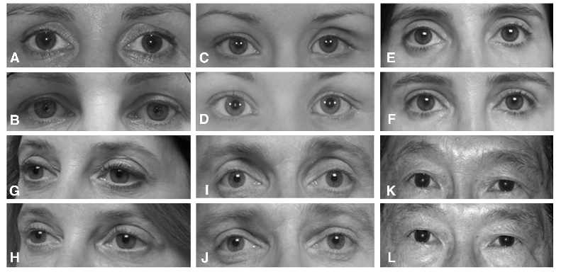 Dermal Fillers to Reduce Eye Problems, Under Eye Bags Corrective Surgery