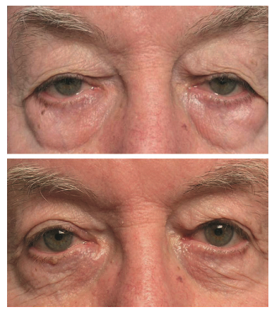 lower blepharoplasty taban md mehryar taban