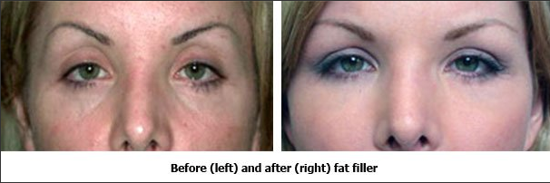 Fat Filler Before and After
